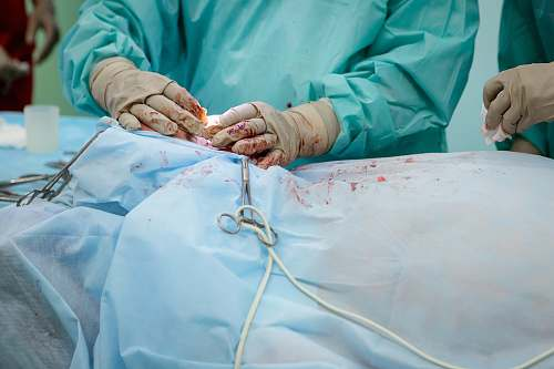 surgery person in operation gown holding scissors hospital