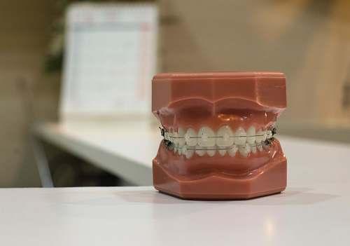 braces denture on white board dental